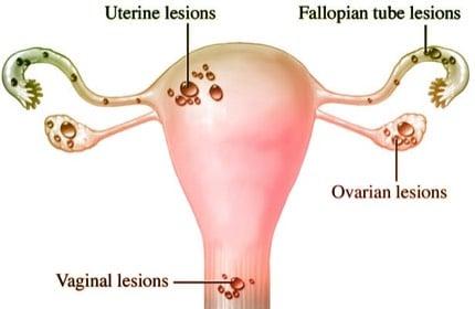symptoms of Endometriosis